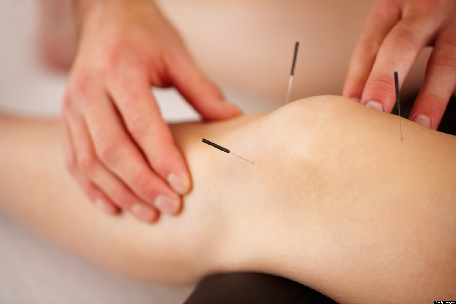 Knee-Pain-Acupuncture-2