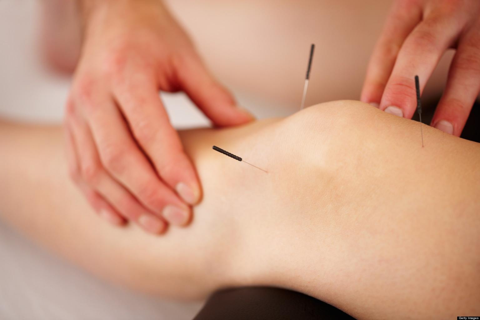 Knee-Pain-Acupuncture-2